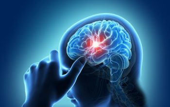 An Overview of Stroke- Causes & Types!